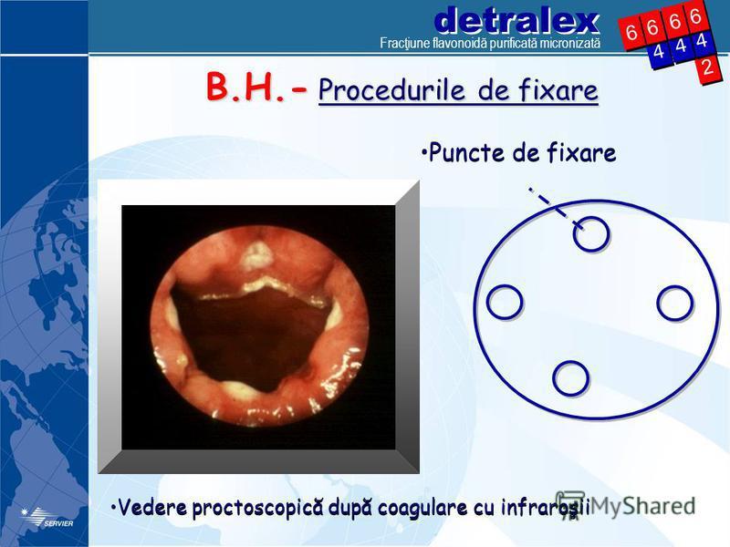 detralex 2 2 4 4 4 4 6 6 4 4 6 6 6 6 6 6 B.H.- Procedurile de fixare Vedere proctoscopică după coagulare cu infraroşii Puncte de fixare Fracţiune flavonoidă purificată micronizată