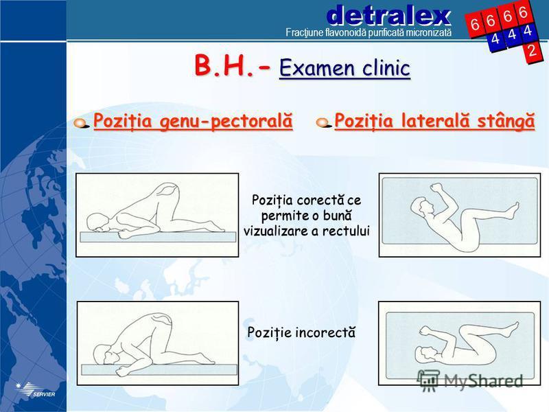 detralex 2 2 4 4 4 4 6 6 4 4 6 6 6 6 6 6 Poziţia genu-pectorală B.H.- Examen clinic Poziţia laterală stângă Poziţia corectă ce permite o bună vizualizare a rectului Poziţie incorectă Fracţiune flavonoidă purificată micronizată