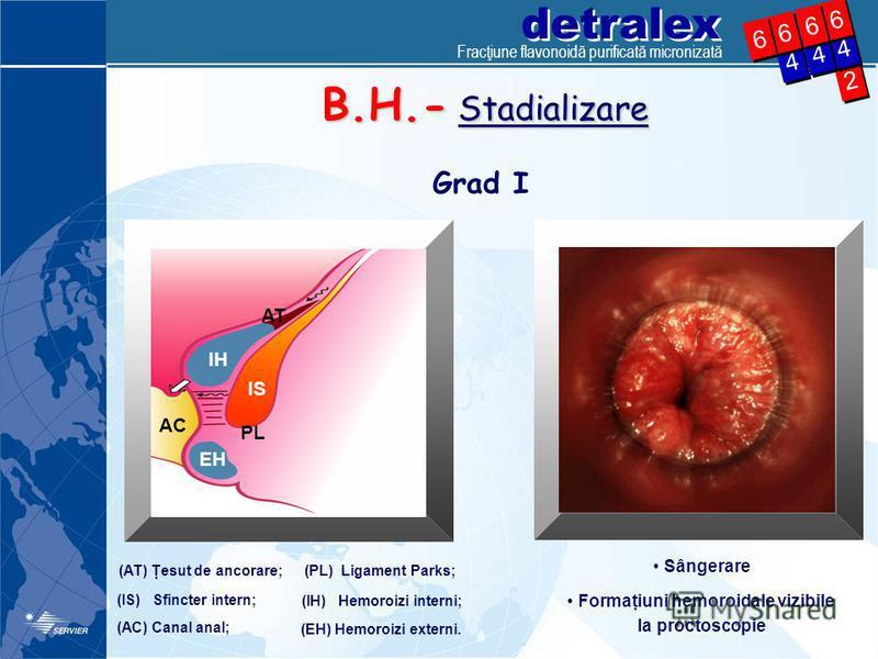 detralex 2 2 4 4 4 4 6 6 4 4 6 6 6 6 6 6 B.H.- Stadializare Grad I (AT) Ţesut de ancorare; (IS) Sfincter intern; (IH) Hemoroizi interni; (PL) Ligament Parks; (AC) Canal anal; (EH) Hemoroizi externi. AT IH IS EH AC PL Sângerare Formaţiuni hemoroidale