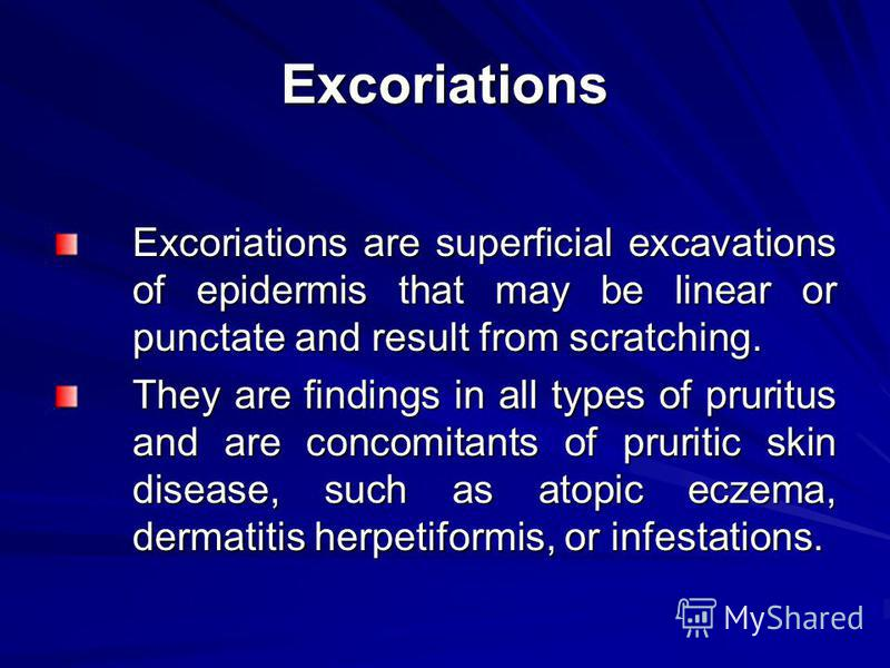 Excoriations Excoriations are superficial excavations of epidermis that may be linear or punctate and result from scratching. They are findings in all types of pruritus and are concomitants of pruritic skin disease, such as atopic eczema, dermatitis