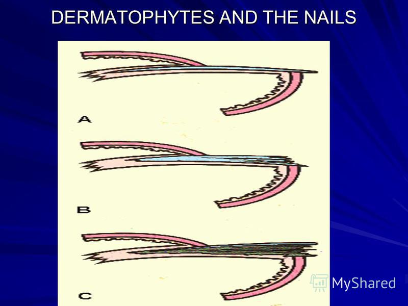 DERMATOPHYTES AND THE NAILS