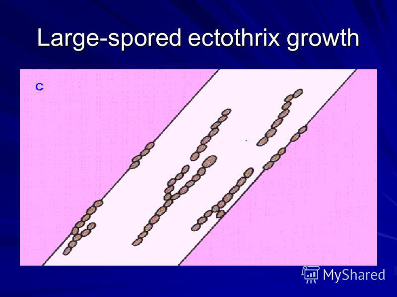 Large-spored ectothrix growth