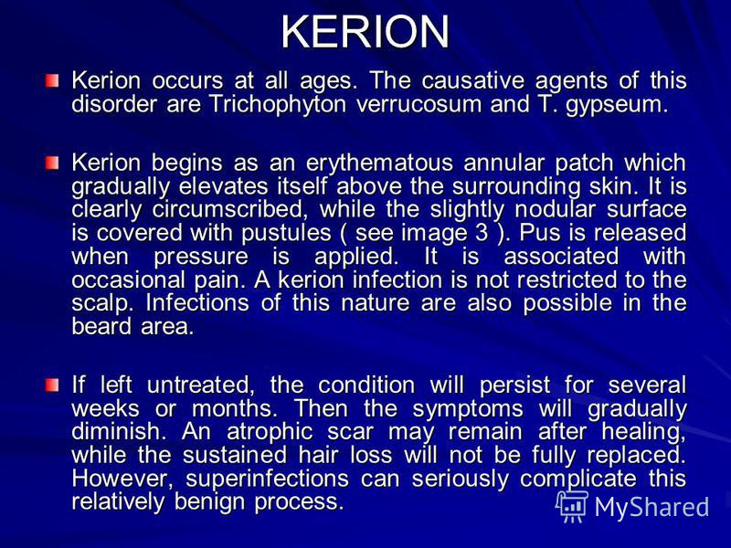 KERION Kerion occurs at all ages. The causative agents of this disorder are Trichophyton verrucosum and T. gypseum. Kerion begins as an erythematous annular patch which gradually elevates itself above the surrounding skin. It is clearly circumscribed