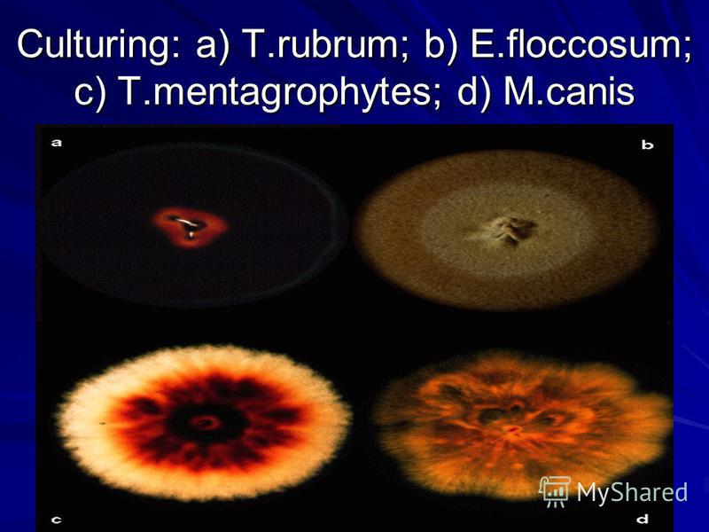 Culturing: a) T.rubrum; b) E.floccosum; c) T.mentagrophytes; d) M.canis