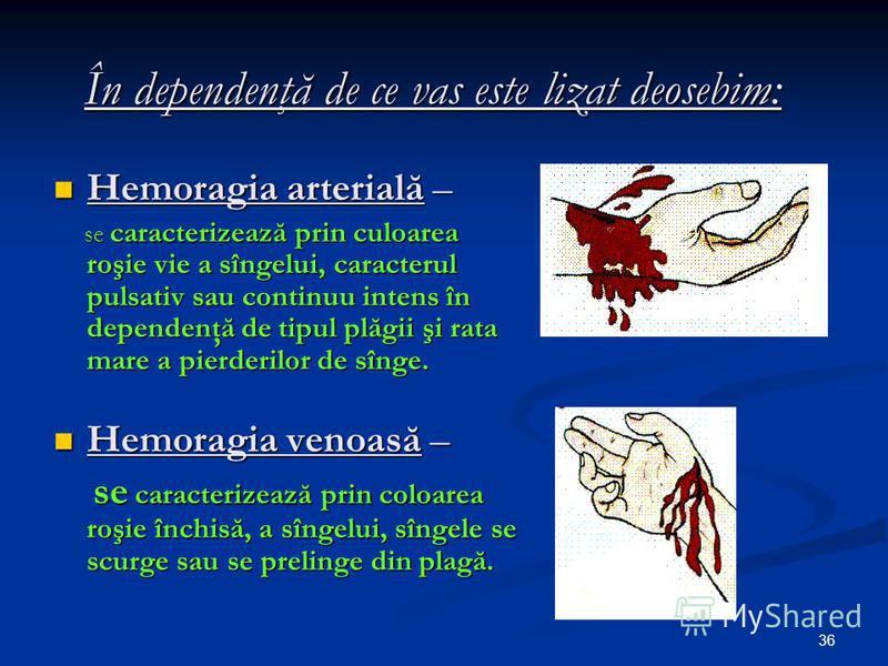 36 În dependenţă de ce vas este lizat deosebim: Hemoragia arterială – Hemoragia arterială – se caracterizează prin culoarea roşie vie a sîngelui, caracterul pulsativ sau continuu intens în dependenţă de tipul plăgii şi rata mare a pierderilor de sîng