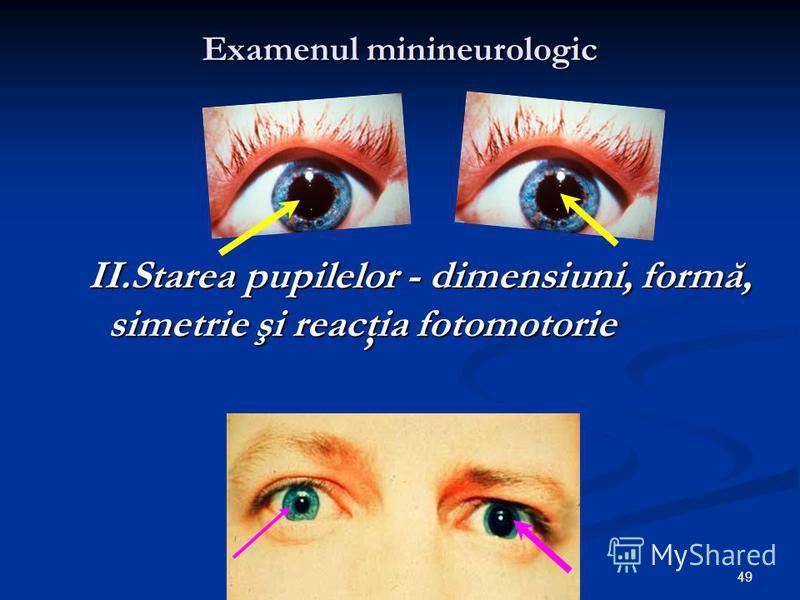 49 Examenul minineurologic II.Starea pupilelor - dimensiuni, formă, simetrie şi reacţia fotomotorie