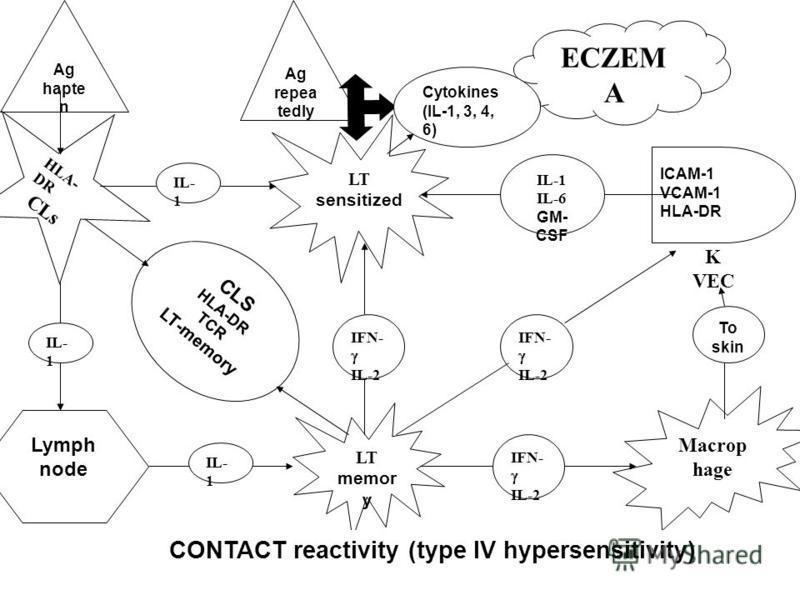 Ag hapte n HLA- DR CLs Lymph node LT memor y LT sensitized ICAM-1 VCAM-1 HLA-DR K VEC IL-1 IL-6 GM- CSF IL- 1 Macrop hage To skin Ag repea tedly ECZEM A IL- 1 CONTACT reactivity (type IV hypersensitivity) CLS HLA-DR TCR LT-memory IFN- IL-2 IFN- IL-2