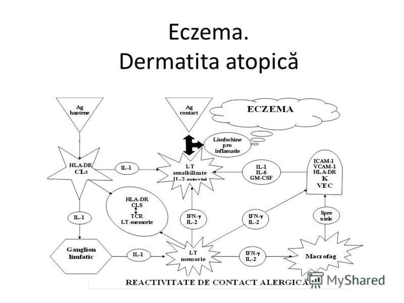 Eczema. Dermatita atopic ă