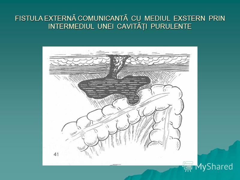 FISTULA EXTERNĂ COMUNICANTĂ CU MEDIUL EXSTERN PRIN INTERMEDIUL UNEI CAVITĂŢI PURULENTE