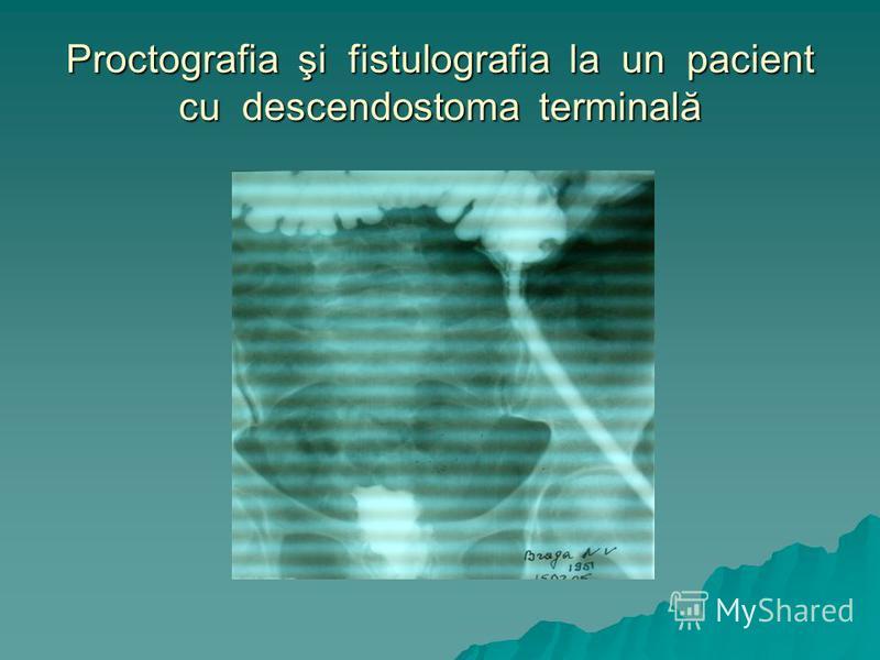 Proctografia şi fistulografia la un pacient cu descendostoma terminală