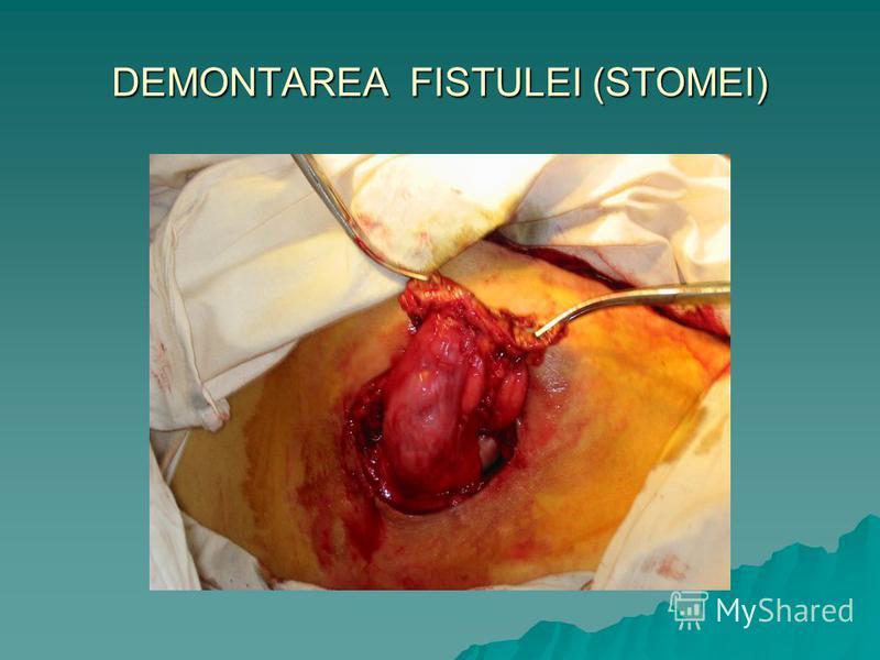 DEMONTAREA FISTULEI (STOMEI)