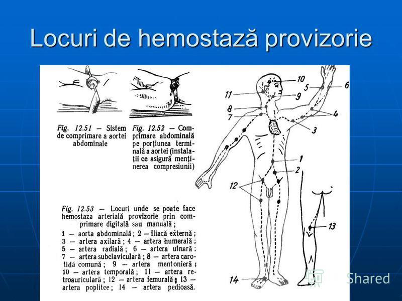 Locuri de hemostază provizorie