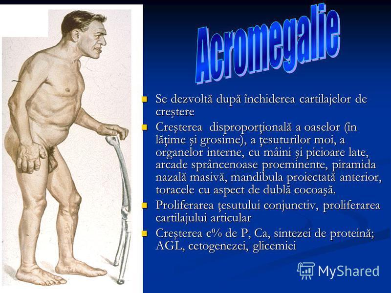 Se dezvoltă după închiderea cartilajelor de creştere Se dezvoltă după închiderea cartilajelor de creştere Creşterea disproporţională a oaselor (în lăţime şi grosime), a ţesuturilor moi, a organelor interne, cu mâini şi picioare late, arcade sprânceno