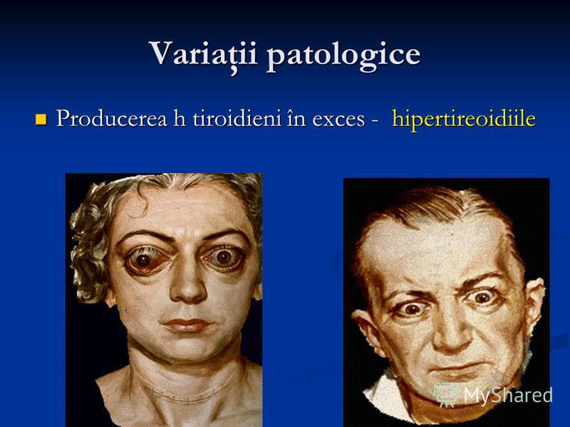 Variaţii patologice Producerea h tiroidieni în exces - hipertireoidiile Producerea h tiroidieni în exces - hipertireoidiile