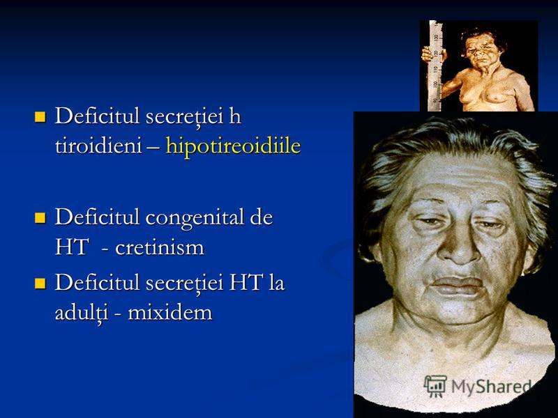 Deficitul secreţiei h tiroidieni – hipotireoidiile Deficitul secreţiei h tiroidieni – hipotireoidiile Deficitul congenital de HT - cretinism Deficitul congenital de HT - cretinism Deficitul secreţiei HT la adulţi - mixidem Deficitul secreţiei HT la a