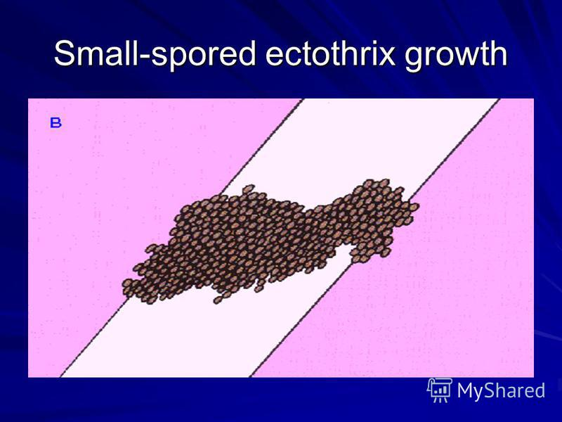Small-spored ectothrix growth