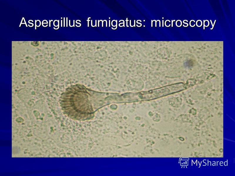 Aspergillus fumigatus: microscopy