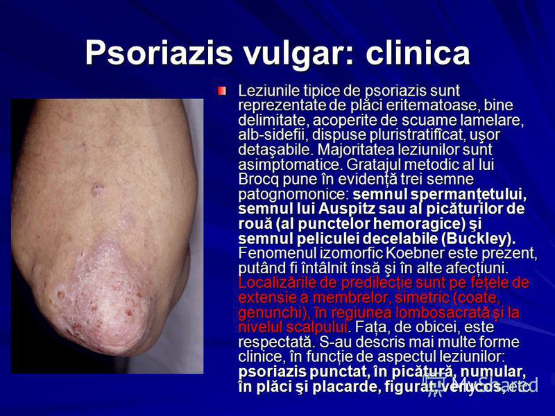 Psoriazis vulgar: clinica Leziunile tipice de psoriazis sunt reprezentate de plăci eritematoase, bine delimitate, acoperite de scuame lamelare, alb-sidefii, dispuse pluristratifîcat, uşor detaşabile. Majoritatea leziunilor sunt asimptomatice. Grataju
