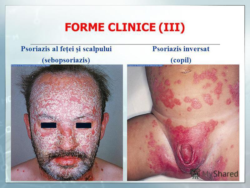 FORME CLINICE (III) Psoriazis al feţei şi scalpului Psoriazis inversat (sebopsoriazis) (copil)