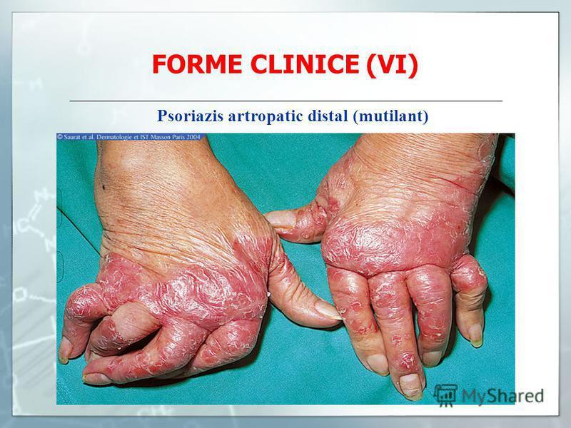 FORME CLINICE (VI) Psoriazis artropatic distal (mutilant)