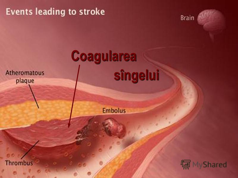 Coagularea Coagularea sîngelui
