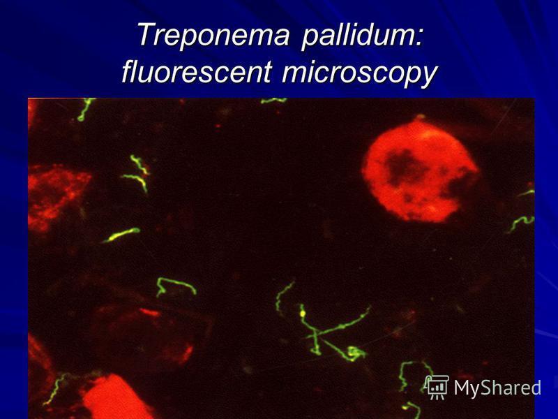 Treponema pallidum: fluorescent microscopy