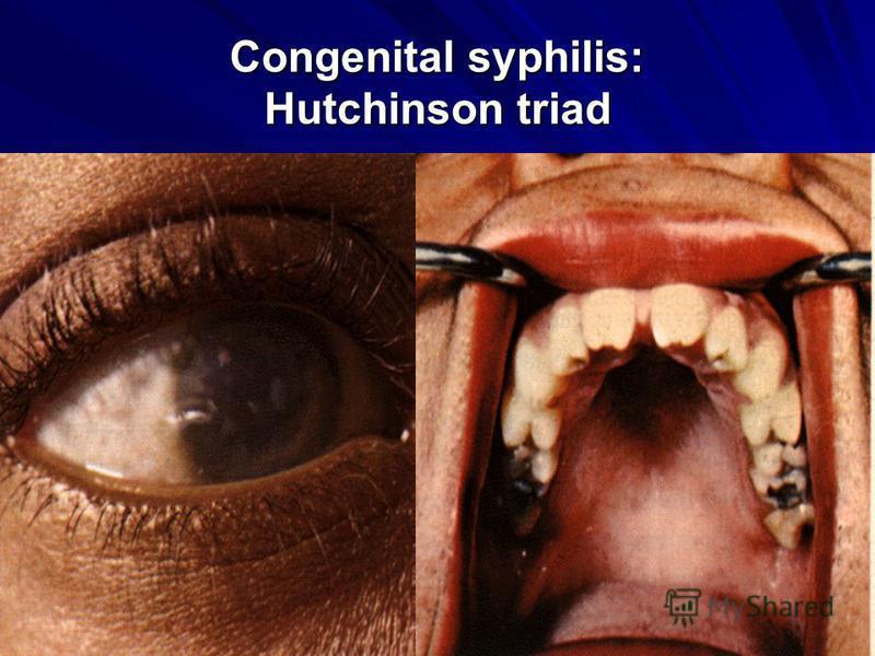 Congenital syphilis: Hutchinson triad