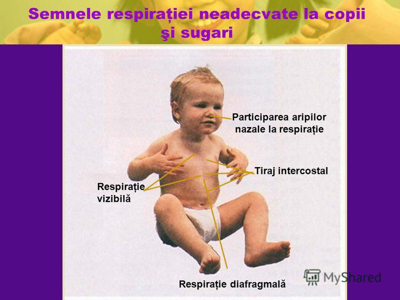 Semnele respiraţiei neadecvate la copii şi sugari Tiraj intercostal Respiraţie vizibilă Respiraţie diafragmală Participarea aripilor nazale la respiraţie