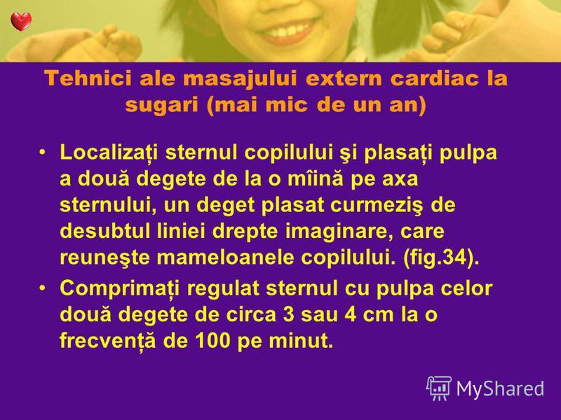 Tehnici ale masajului extern cardiac la sugari (mai mic de un an) Localizaţi sternul copilului şi plasaţi pulpa a două degete de la o mîină pe axa sternului, un deget plasat curmeziş de desubtul liniei drepte imaginare, care reuneşte mameloanele copi