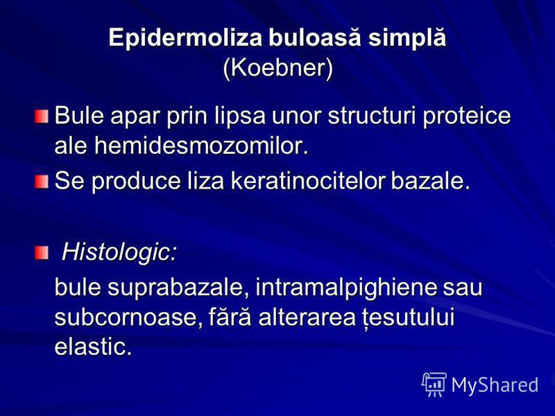 Bule apar prin lipsa unor structuri proteice ale hemidesmozomilor. Se produce liza keratinocitelor bazale. Histologic: Histologic: bule suprabazale, intramalpighiene sau subcornoase, fără alterarea ţesutului elastic.