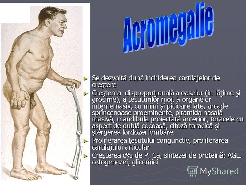 Se dezvoltă după închiderea cartilajelor de creştere Se dezvoltă după închiderea cartilajelor de creştere Creşterea disproporţională a oaselor (în lăţime şi grosime), a ţesuturilor moi, a organelor internemasiv, cu mîini şi picioare late, arcade sprî