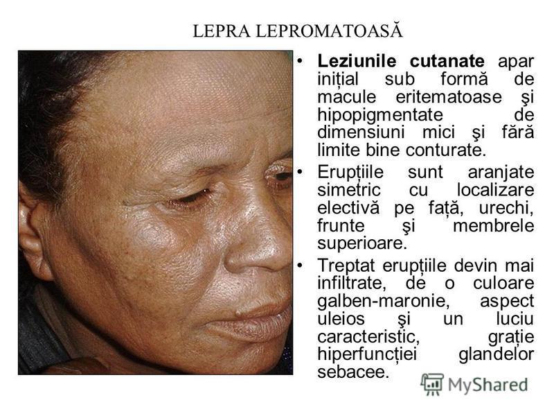 LEPRA LEPROMATOASĂ Leziunile cutanate apar iniţial sub formă de macule eritematoase şi hipopigmentate de dimensiuni mici şi fără limite bine conturate. Erupţiile sunt aranjate simetric cu localizare electivă pe faţă, urechi, frunte şi membrele superi