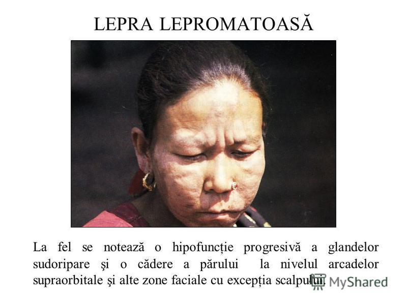 La fel se notează o hipofuncţie progresivă a glandelor sudoripare şi o cădere a părului la nivelul arcadelor supraorbitale şi alte zone faciale cu excepţia scalpului.