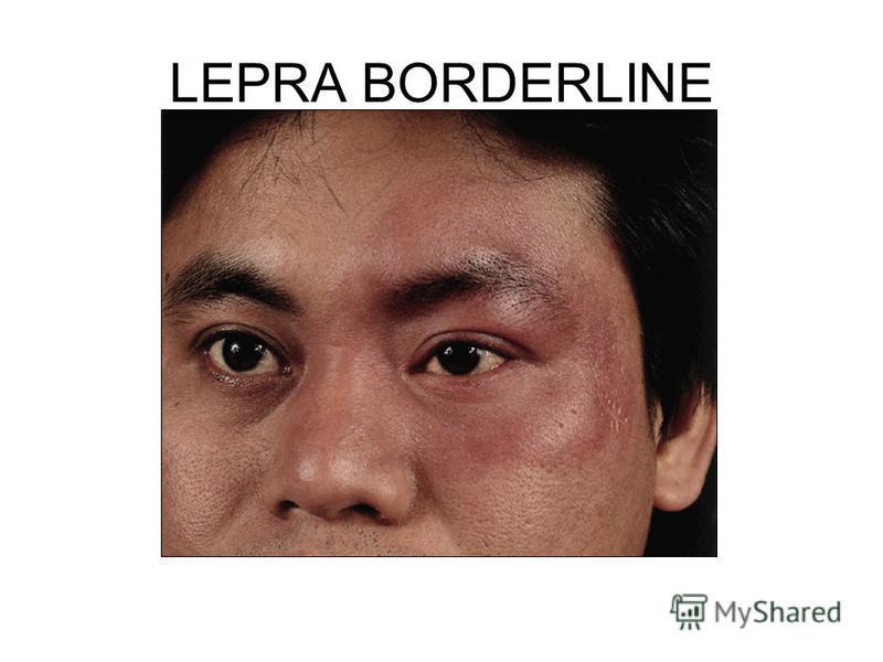 LEPRA BORDERLINE