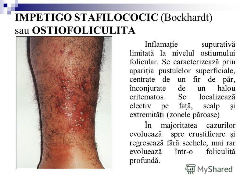 IMPETIGO STAFILOCOCIC (Bockhardt) sau OSTIOFOLICULITA Inflamaţie supurativă limitată la nivelul ostiumului folicular. Se caracterizează prin apariţia pustulelor superficiale, centrate de un fir de păr, înconjurate de un halou eritematos. Se localizea