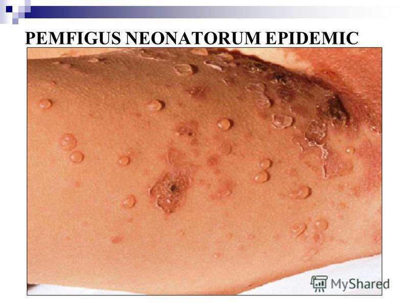 PEMFIGUS NEONATORUM EPIDEMIC
