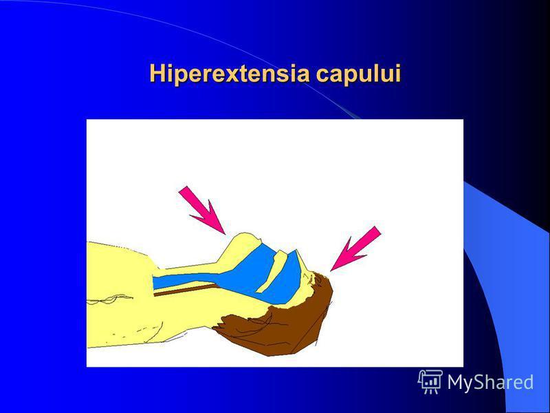 Hiperextensia capului