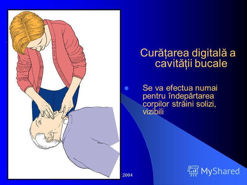 Oct 2004 Curăţarea digitală a cavităţii bucale Se va efectua numai pentru îndepărtarea corpilor străini solizi, vizibili