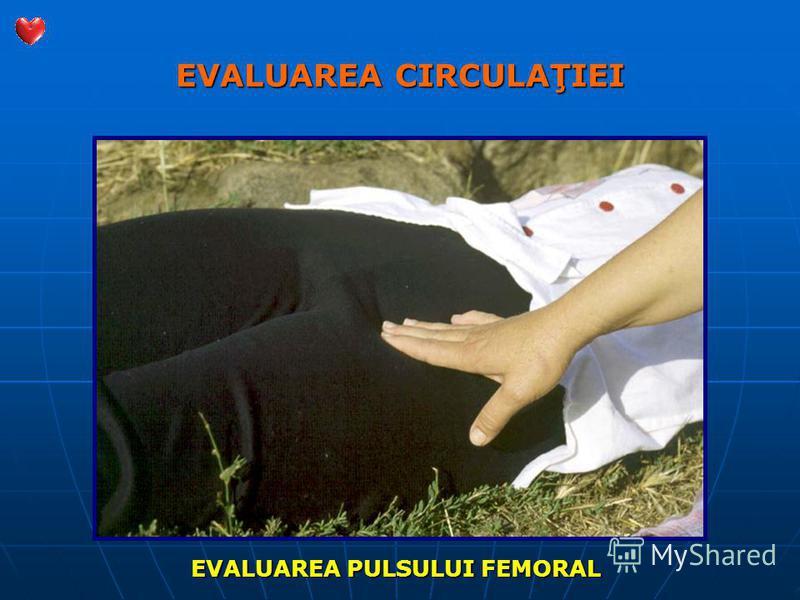 EVALUAREA CIRCULAŢIEI EVALUAREA PULSULUI FEMORAL