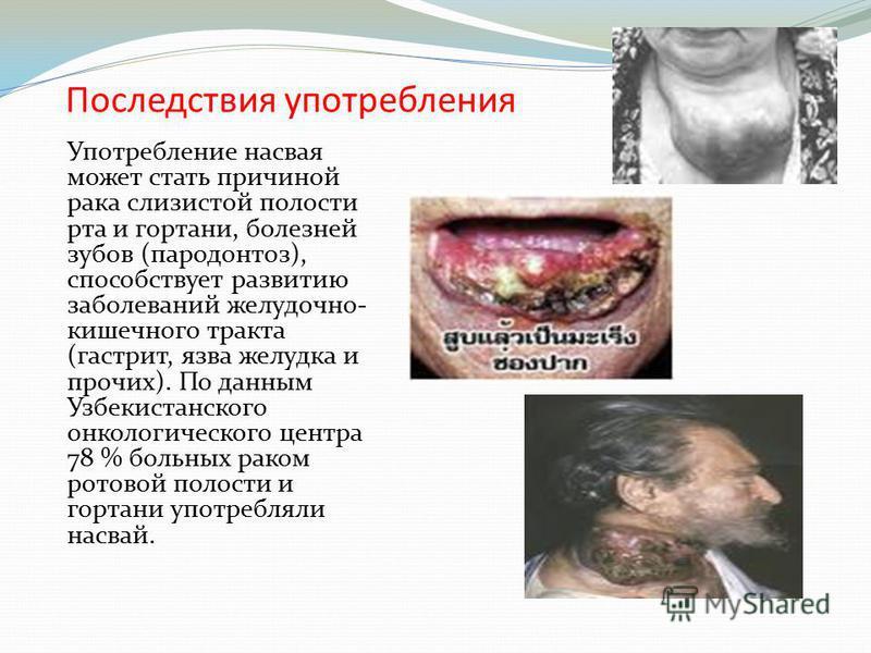 Последствия употребления Употребление насвая может стать причиной рака слизистой полости рта и гортани, болезней зубов (пародонтоз), способствует развитию заболеваний желудочно- кишечного тракта (гастрит, язва желудка и прочих). По данным Узбекистанс