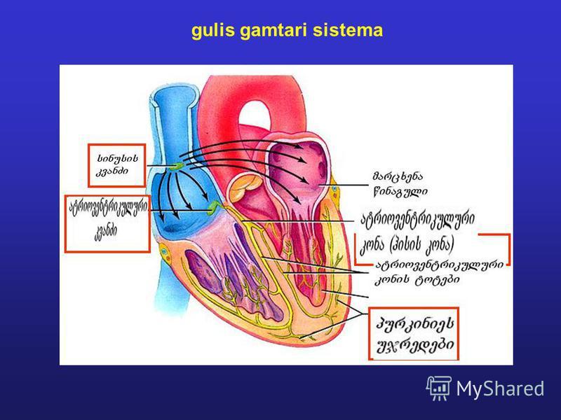 1.JPG gulis gamtari sistema