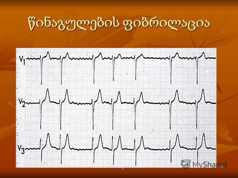 Activité électrique du coeur10