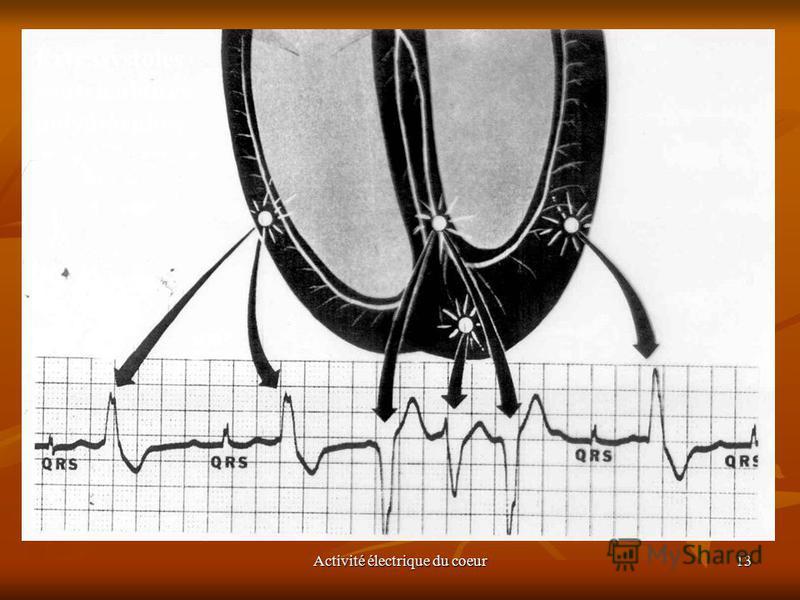 Activité électrique du coeur13 Extrasystoles ventriculaires polymorphes