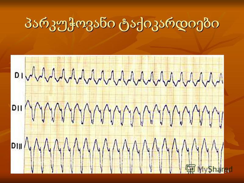 Activité électrique du coeur14