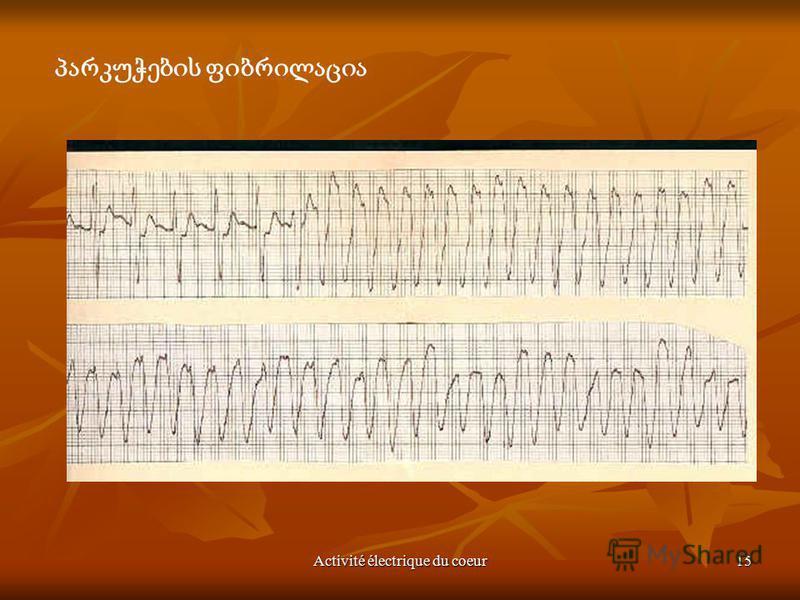 Activité électrique du coeur15