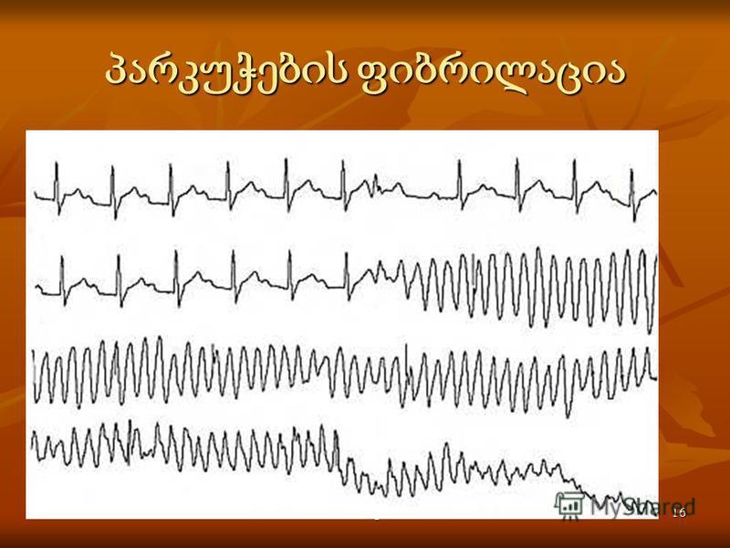 Activité électrique du coeur16