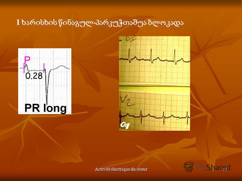 Activité électrique du coeur17 I -