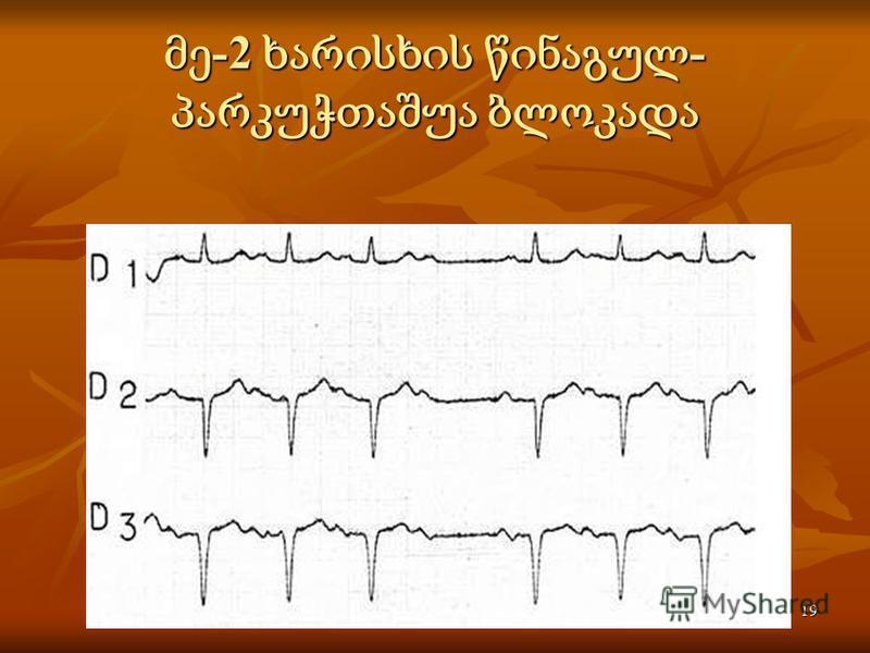 Activité électrique du coeur19 -2 - -2 -