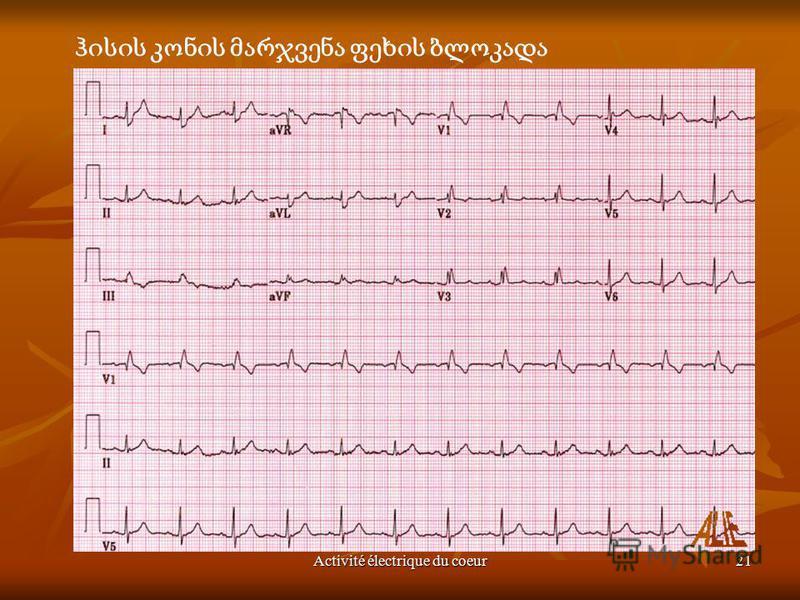 Activité électrique du coeur21 Apprendre à lire l'électrocardiogramme : l'ECG - Auteur: J.Sende
