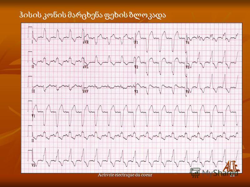 Activité électrique du coeur22